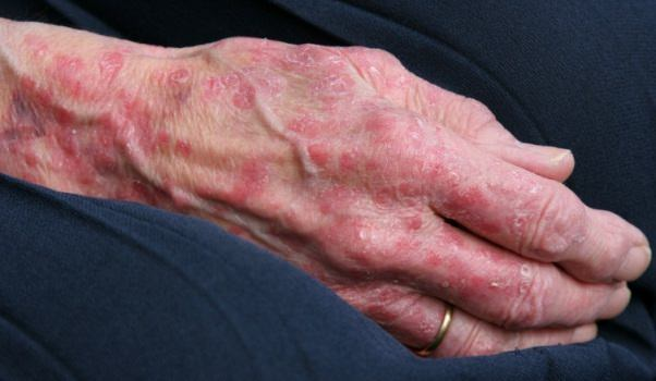 Home Remedies for Rashes Treatment